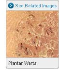 Picture of Plantar Warts