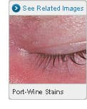 Picture of Port Wine Stains