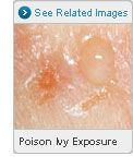 Picture of Rash from Poisonous Plants