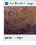 Picture of Razor Bumps