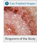 Picture of Ringworm of the Body (Tinea Corporis)