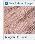 Picture of Telogen Effluvium