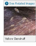 Picture of Yellow Dandruff