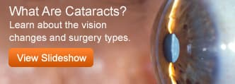 Cataracts -Slideshow