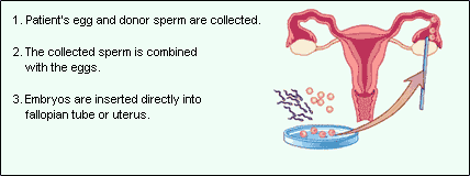 art sperm donation