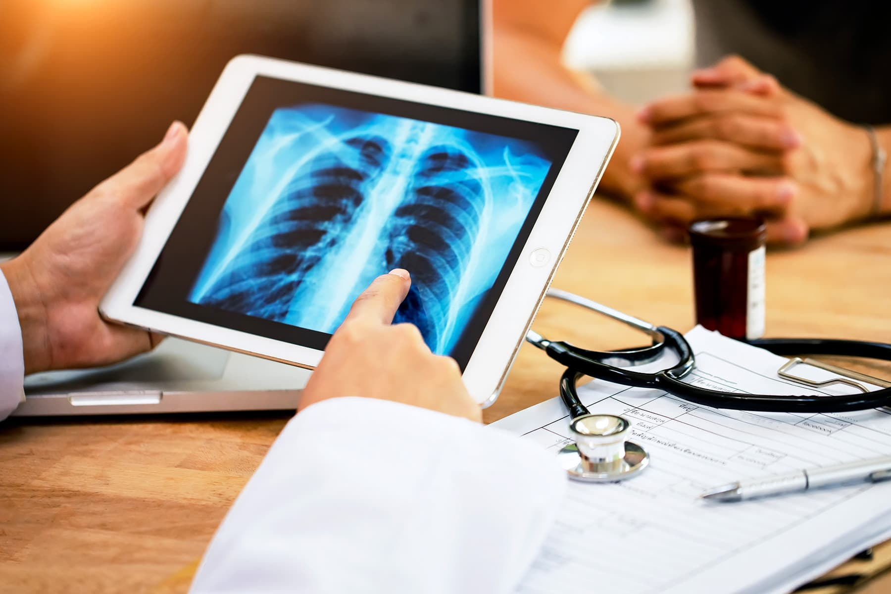 Targeted High-Dose Radiation Helps Fight Advanced Lung Cancer