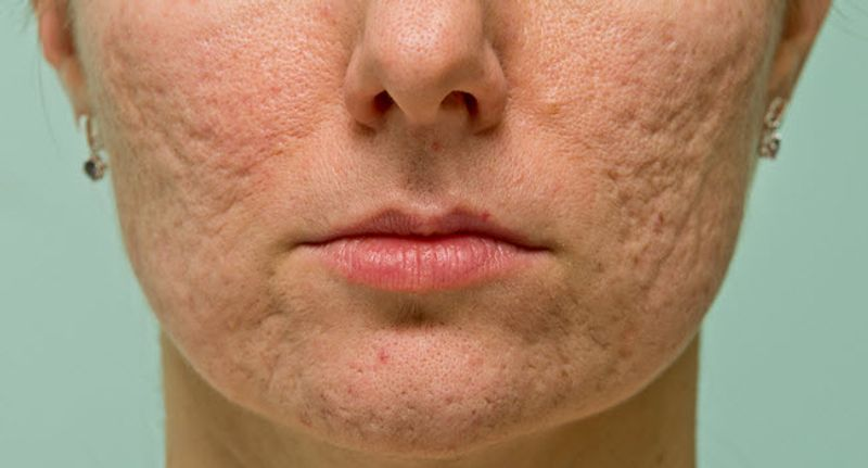 A Dermatologist S Tips For Acne Scars