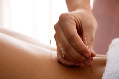 photo of placing acupuncture needles in back