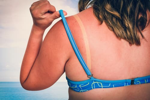 photo of sunburned woman at beach