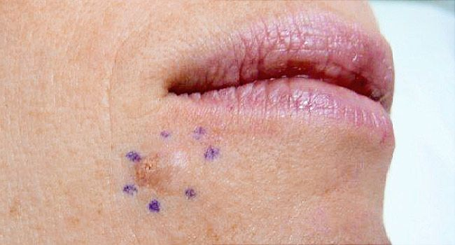 Mom S Skin Cancer Pic Shoots Around The Web
