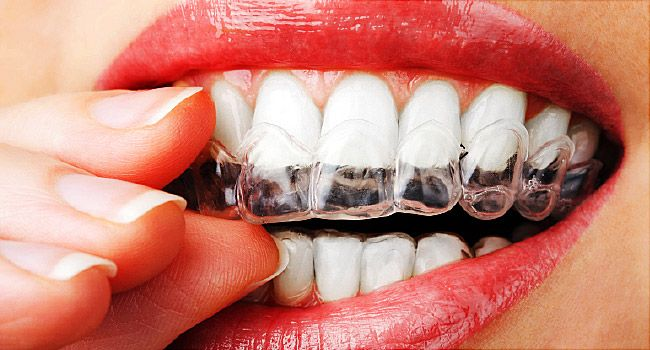 Brighter White Teeth Whitening