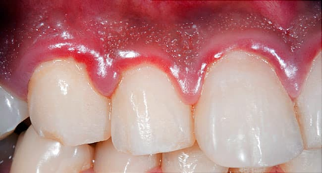 How to Know If You Have Gum Disease and What to Do About It