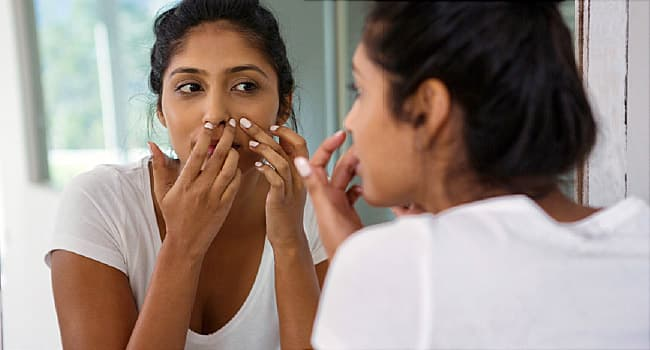 Top Acne Treatment Mistakes: Popping Pimples, Overdoing Products