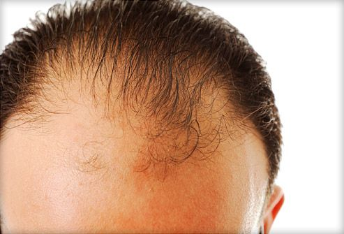 How to prevent going bald naturally