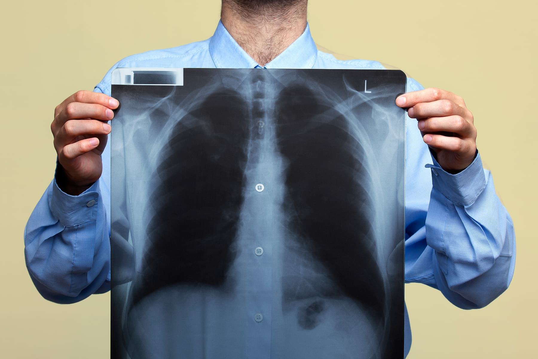 New Guidelines Could Double Number Eligible for Lung Cancer Screening  - web md