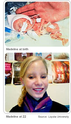 World's tiniest preemie at birth and at 22