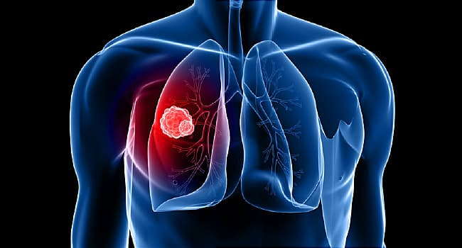 Faulty Immune System May Lead to Lung Cancer  - web md