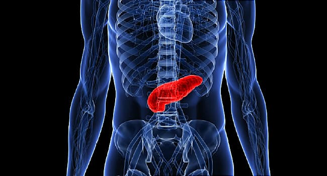Blood Test for Pancreatic Cancer May Aid Detection