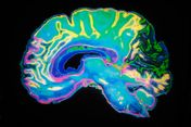 colorful brain image