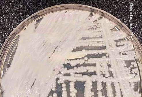'Superbug' Fungus Spreads Among Vulnerable in Two U.S. Cities