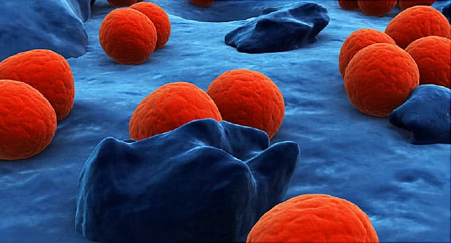 Can a Cheap Pill Cure Gonorrhea? New Test Can Tell  - web md