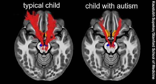 Why Autism Is Different In Brains Of >> Brain Scans Yield More Clues To Autism