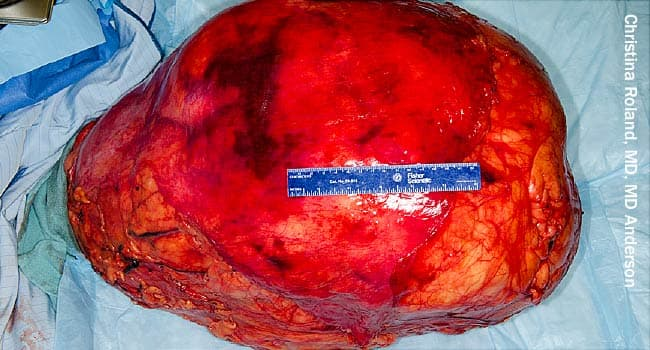Big, Fat Tumors: Liposarcomas Can Top 70 Pounds