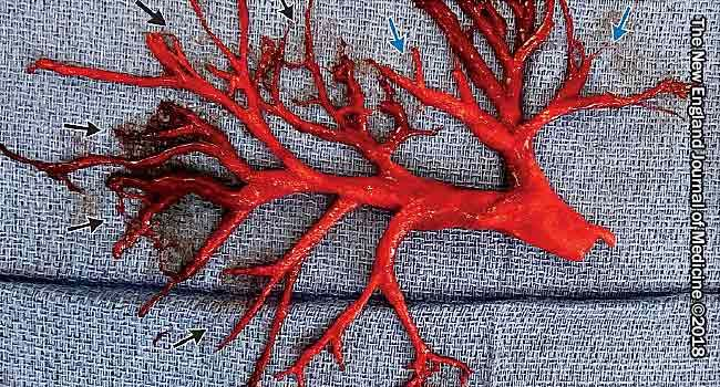 lung-shaped blood clot