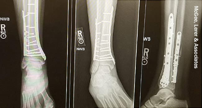 photo of Xray of injured leg