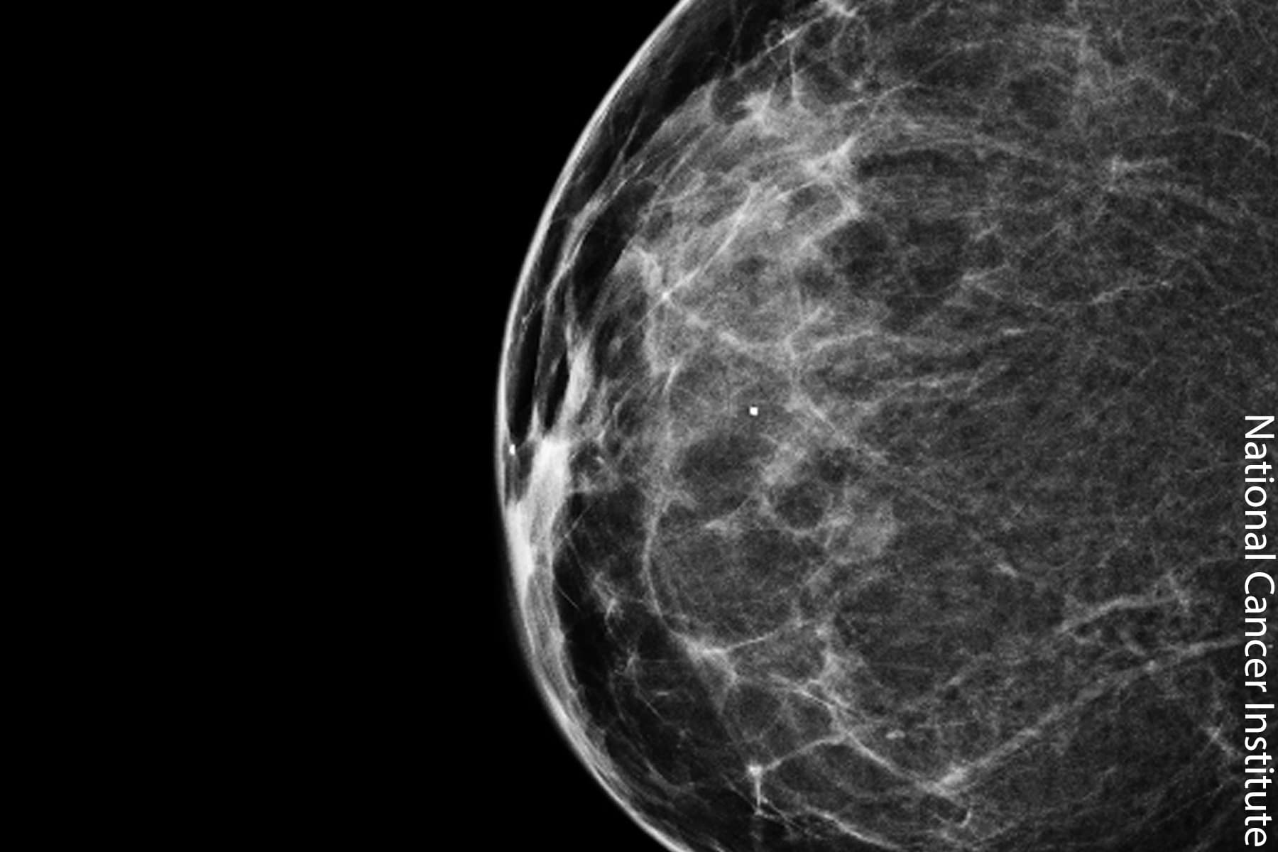 Could 3-D Mammograms Soon Be the Standard?