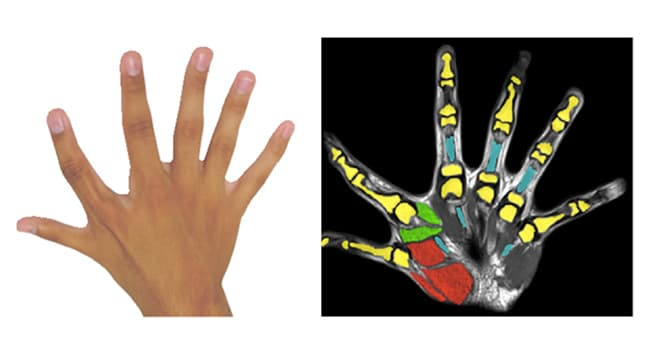 photo of hand with six fingers