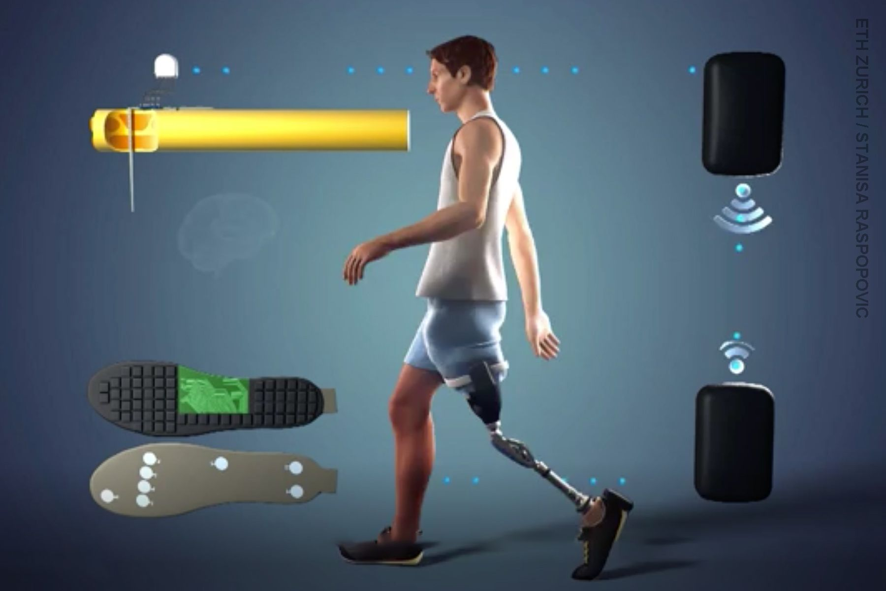 photo of prosthetic leg illustration