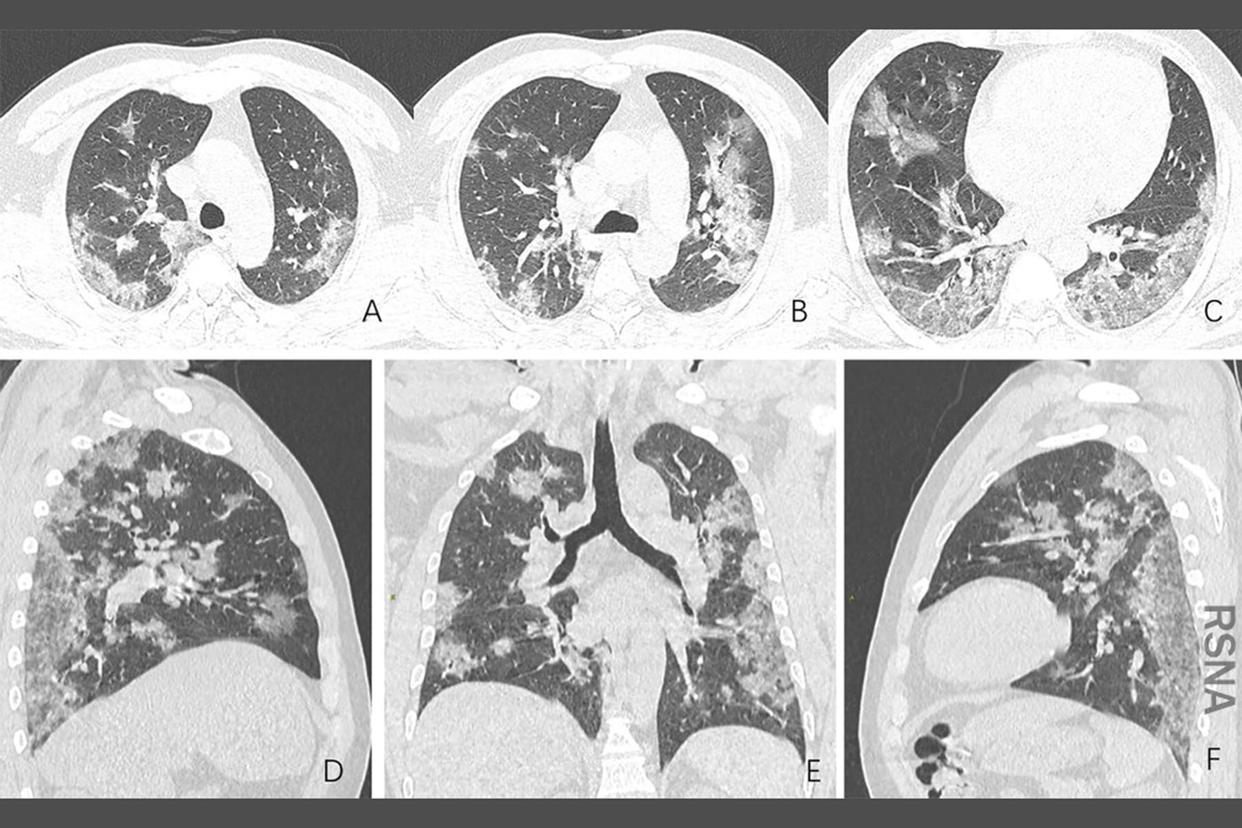 Doctors Puzzle Over COVID-19 Lung Problems  - web md