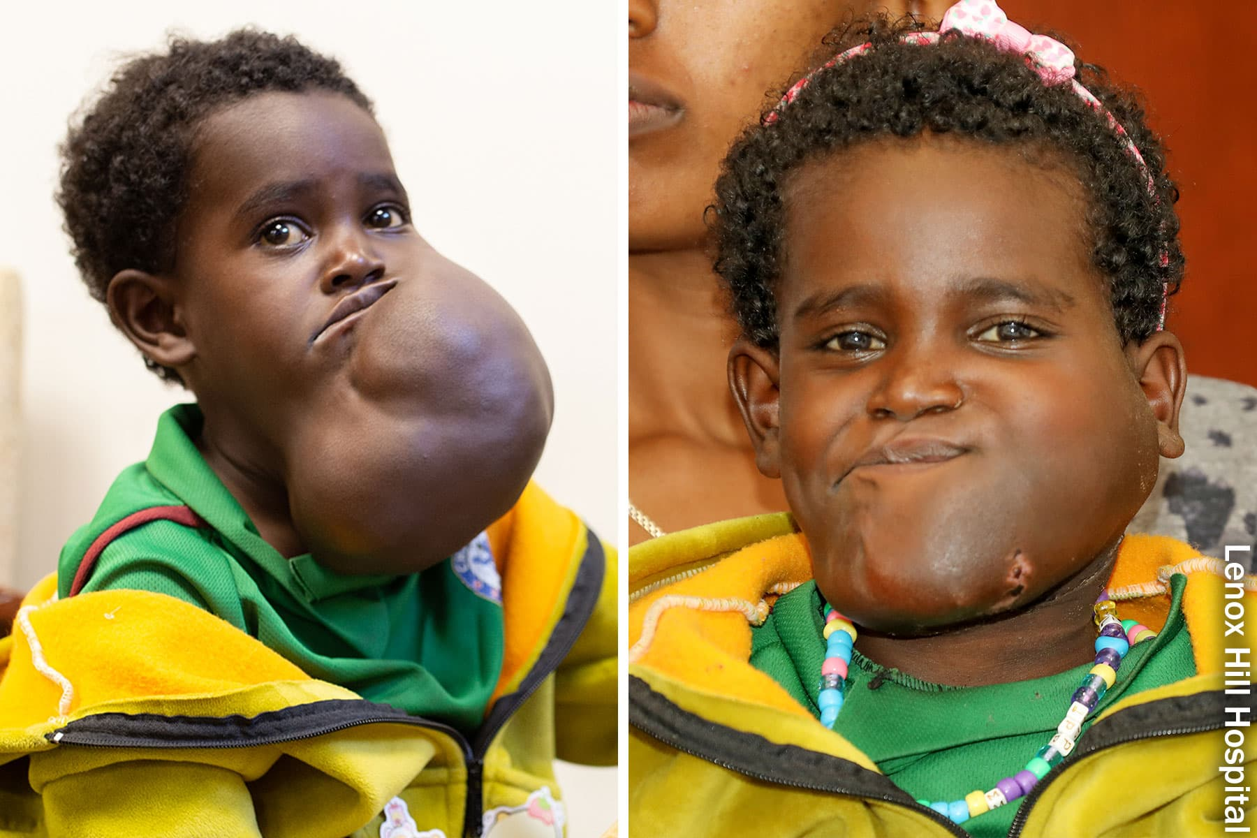 girl with tumor before after
