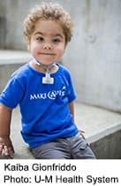 Flexible implant adapts with child's growth,