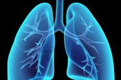 photo of medical illustration lungs blue black tra