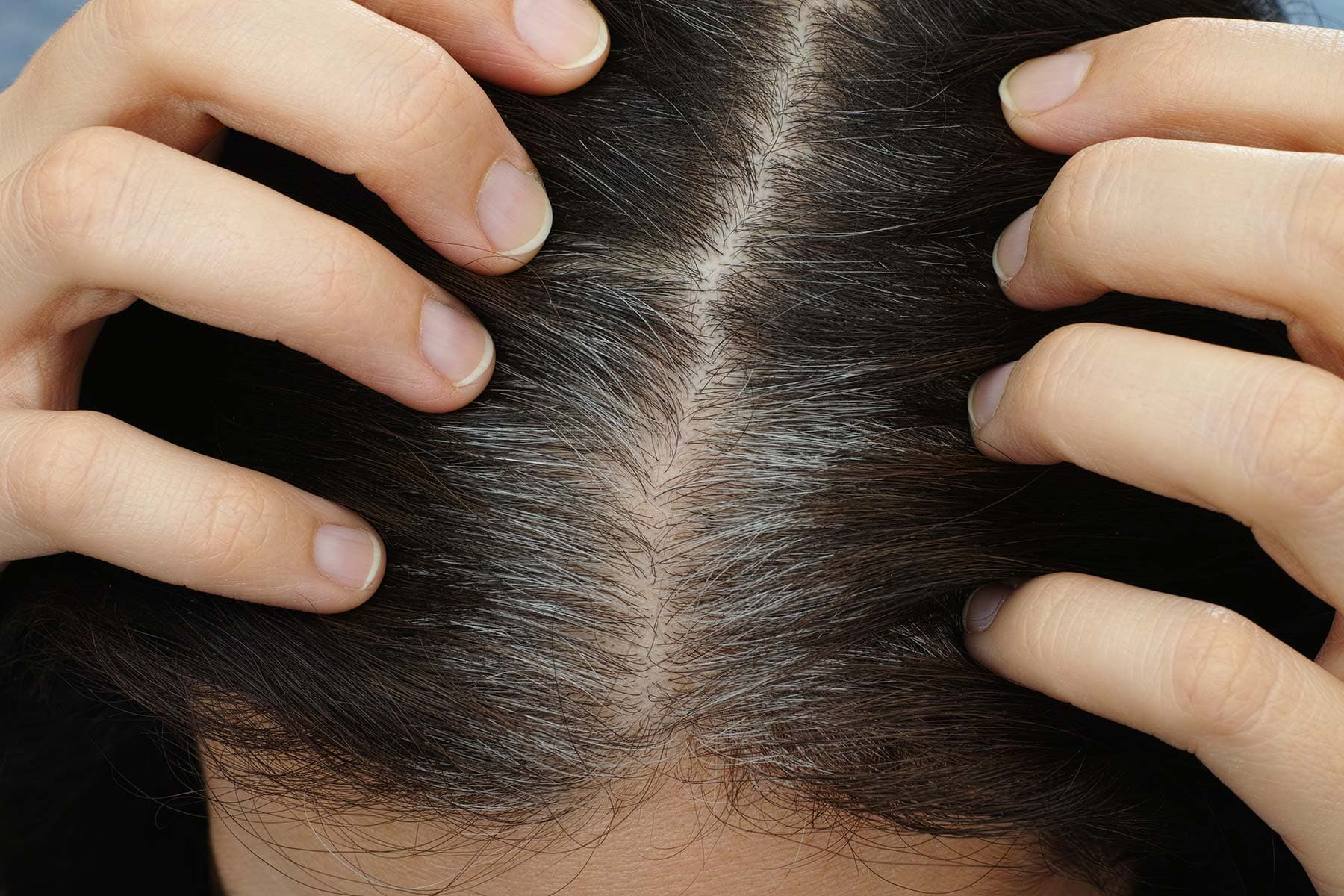 www.webmd.com: When Will You Go Gray? Your Race Matters