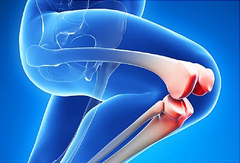 Knee Pain Relief From Osteoarthritis And Staying Active