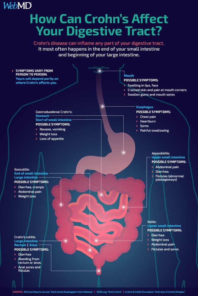 how can crohns affect your digestive tract