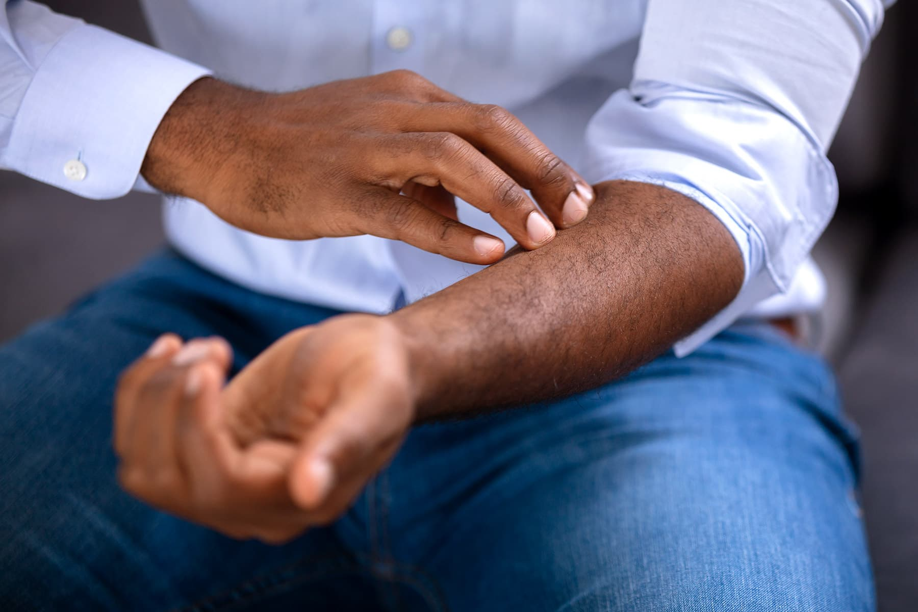 photo of itchy arm