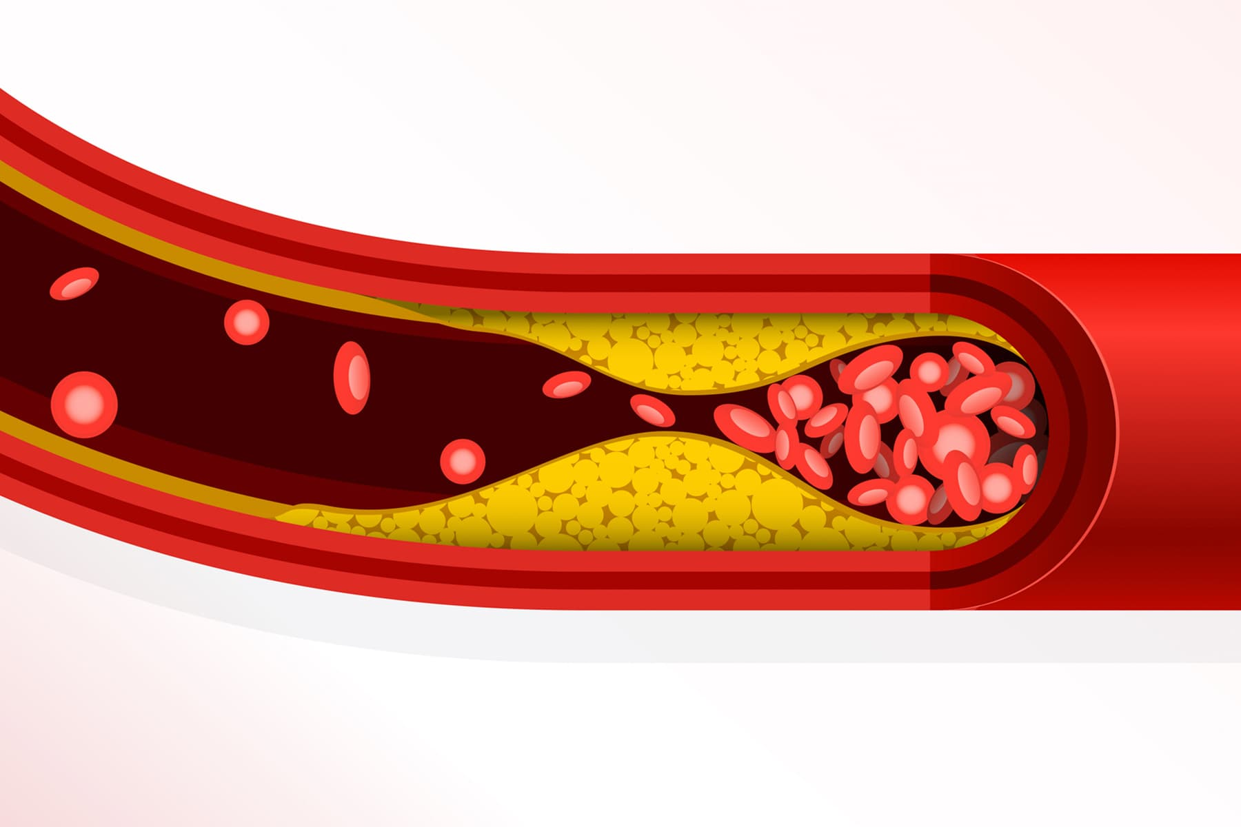 Scientists Find Source of COVID Clots  - web md