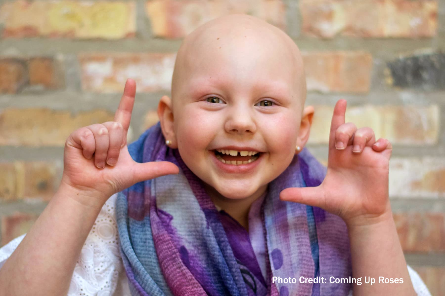 Meet Rosie: She Inspires Other Kids With Hair Loss