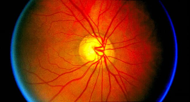Google Retina Scan May Reveal Heart Attack Risk
