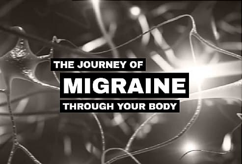 Migraine Headache Video on Side Effects in Other Areas of Body