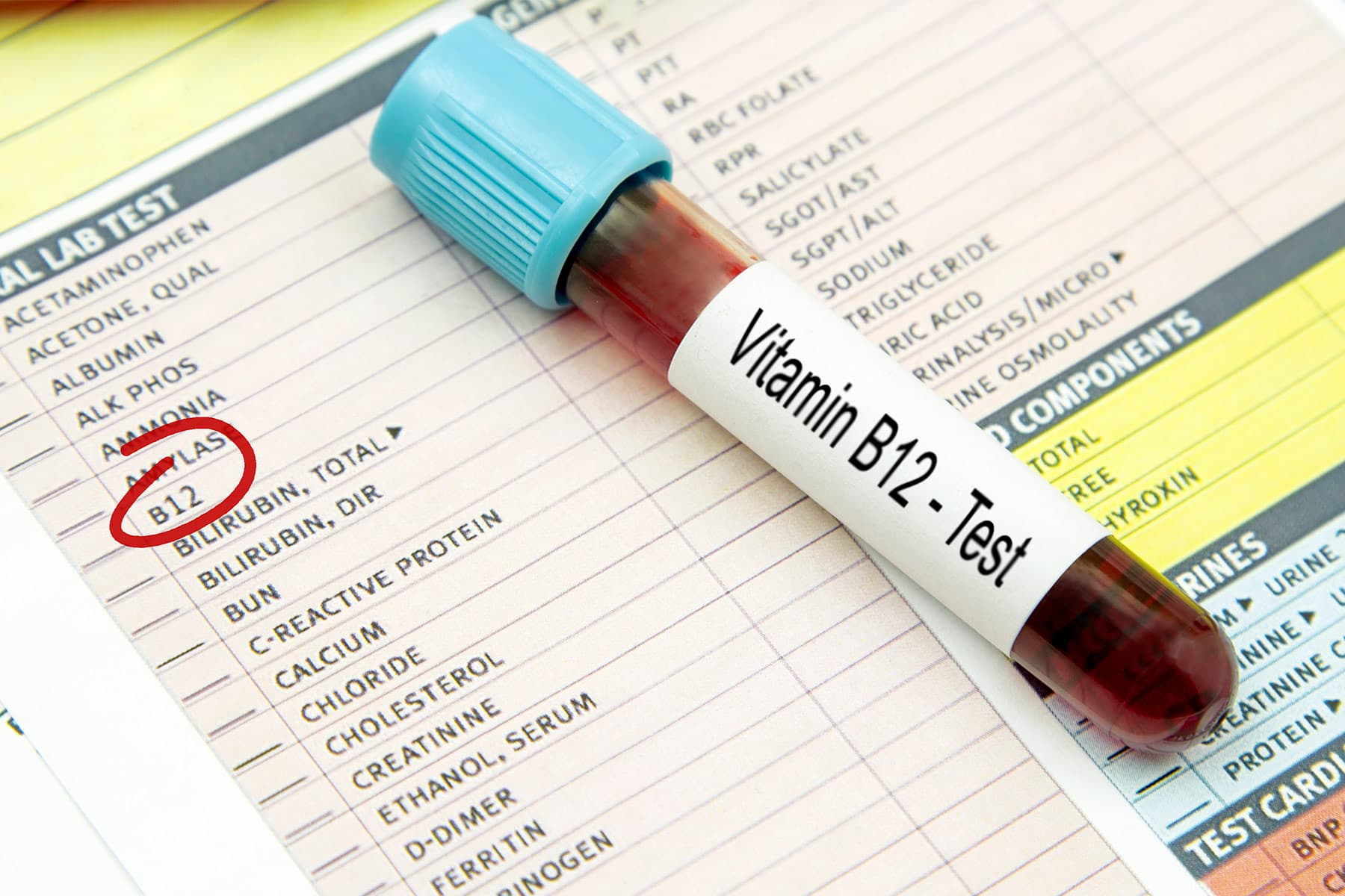 Vitamin B12 Deficiency: Causes, Symptoms, and Treatment