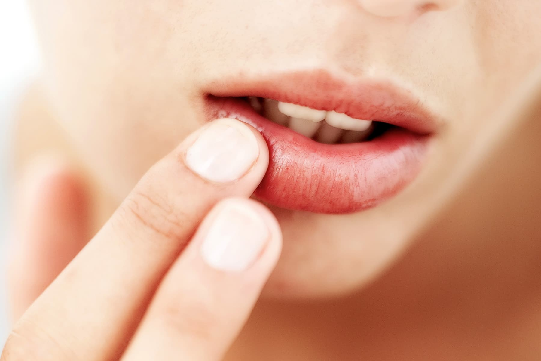 Chapped Lips Remedies: Lip Balm Tips for Severely Dry Lips
