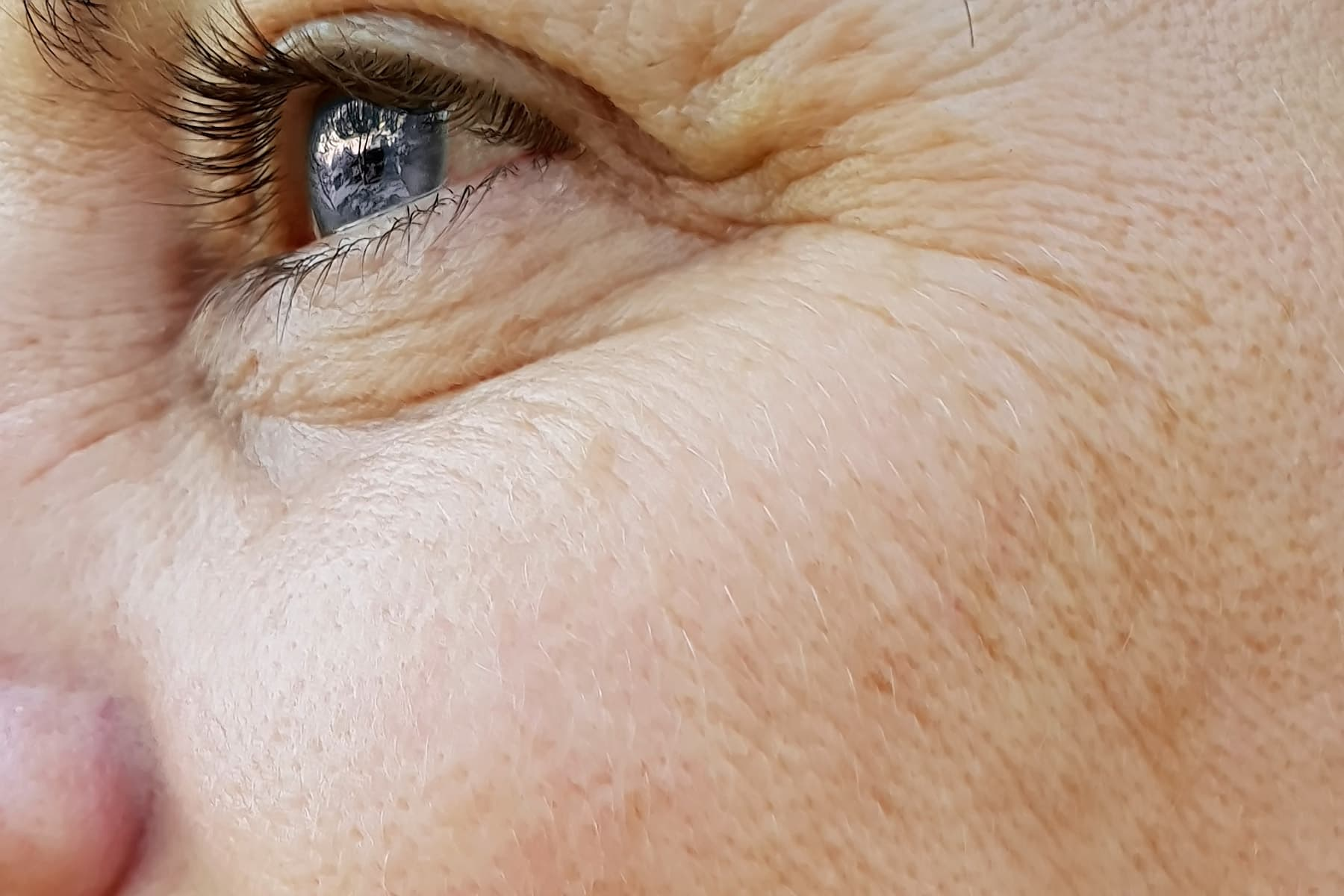 Wrinkles Causes, Sun Damage, Treatments, and More