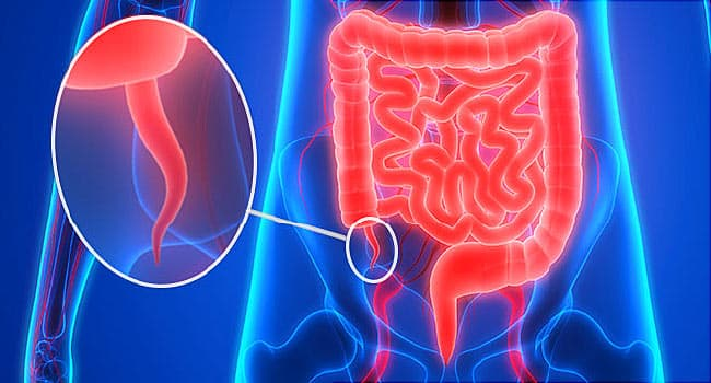 Quiz: How Much Do You Know About Your Appendix?