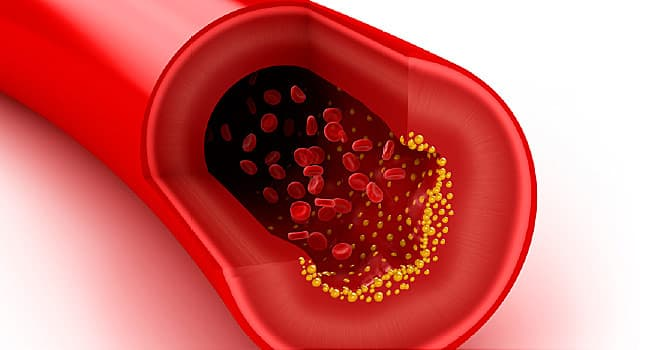 New Drug  Could Help Tough-to-Treat Cholesterol