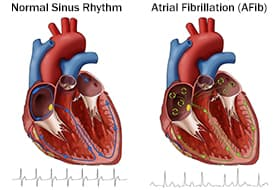 AFib and normal sinus rhythm